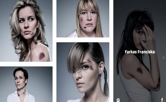 NGO ฮังการีชวนคนดังติดรอยสักบาดแผลปลอมๆ กระตุ้นการไม่ทำร้ายสตรี