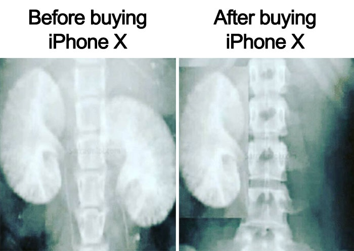 เอ๊ะ...นี่ขายอวัยวะซื้อ iPhone X กันเลยเหรอ